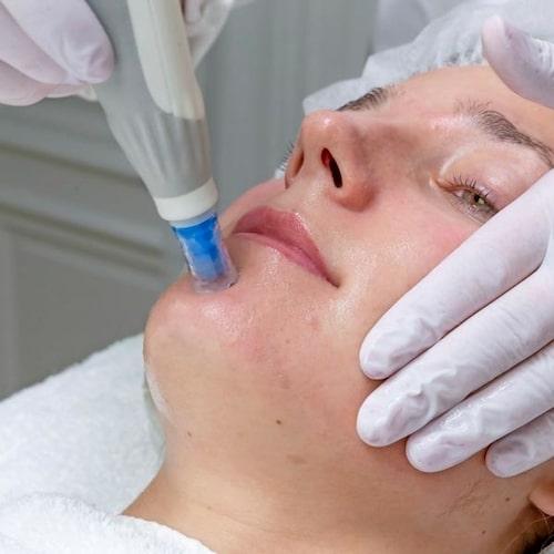 Aktiva ämnen slussas ner i huden med mininålar (dermapen).