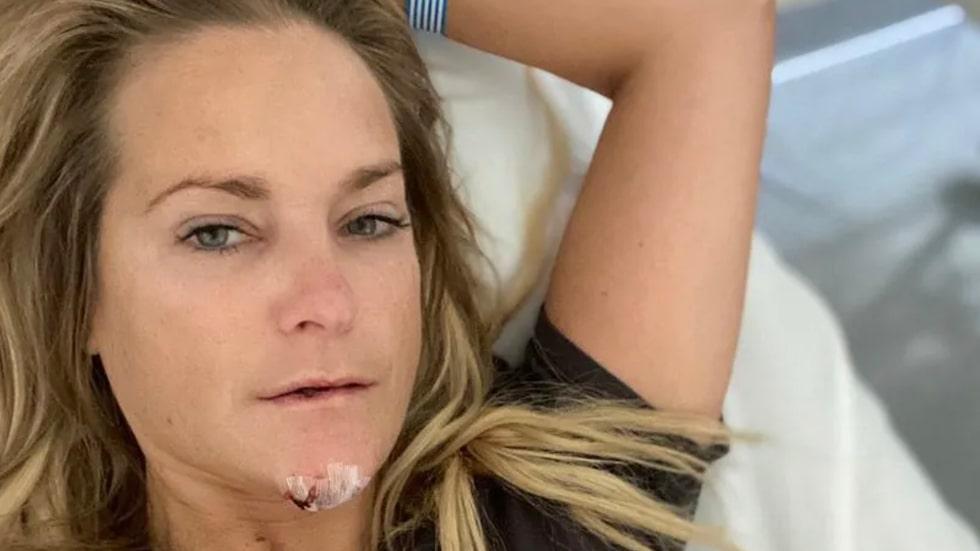 """Tänderna och hakan är Laila inte så orolig för – däremot käken. """"Det visade sig nämligen att jag även fått en fraktur i käken. Jag kan inte riktigt bita ihop eller öppna munnen."""""""