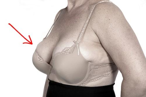 """""""Dubbla"""" bröst."""