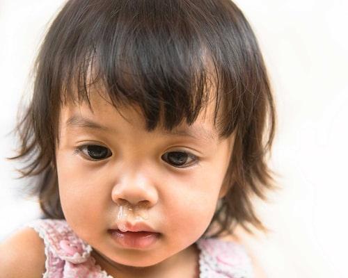 Ibland hör man att barnet ska vara hemma från förskolan om snoret är gult eller grönt, men faktum är att det är det genomskinliga snoret som är mest smittsamt.