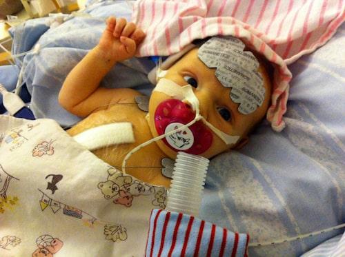 Vilya några dagar efter första operation i januari 2013.
