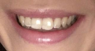 fläckiga tänder efter tandblekning