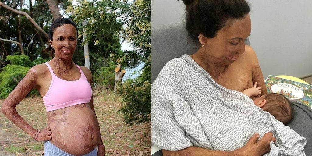 Turia Pitt har brännskador på 65 procent av sin kropp, men har nu blivit mamma.