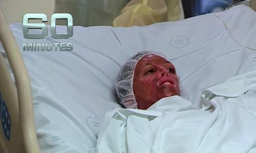 I TV-programmet 60 minutes har Turia tidigare berättat om tiden på sjukhuset efter branden.