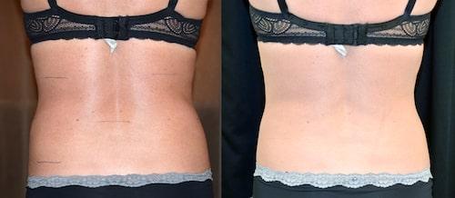 Före och efterbilder: Anna ville bli av med envist fett. Efteråt är ryggen är smalare.