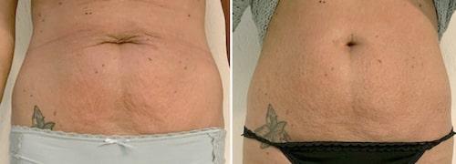 På efterbilden till höger ser man att huden är slätare och fastare.