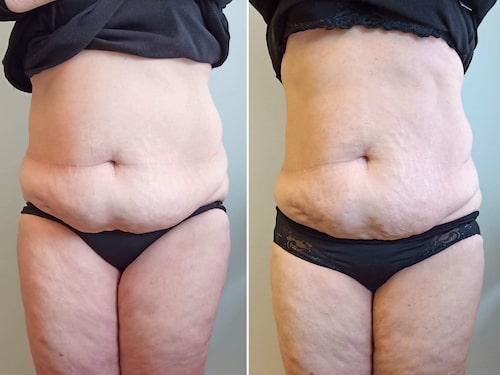 Förebilden till vänster: Ylva ville minska magen. Efterbilden till höger: Magen är mindre och något slätare.