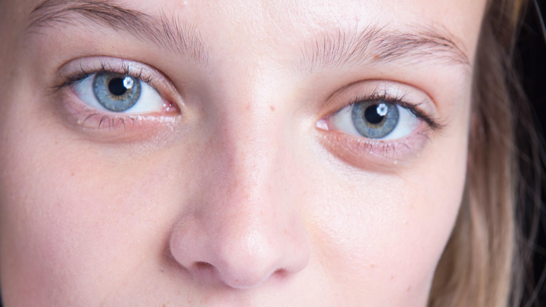 minska porer på näsan