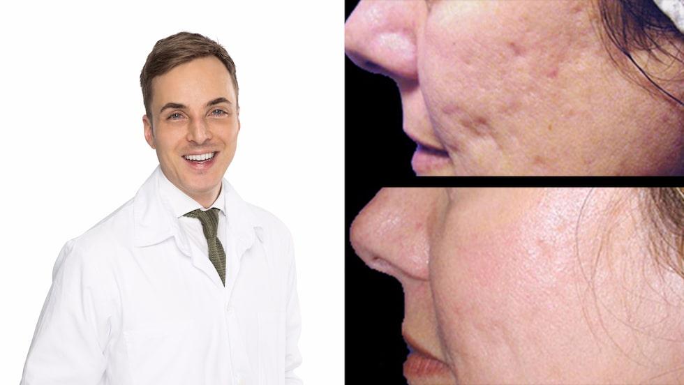 Hudläkare Christoph Martschin jobbar på Akademikliniken, som bland annat behandlar akneärr med laser.
